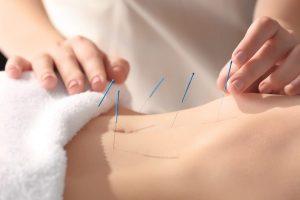 tüp bebek ve akapunktur